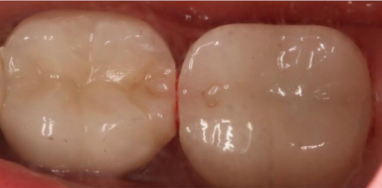 CEREC-Crown-After-Image