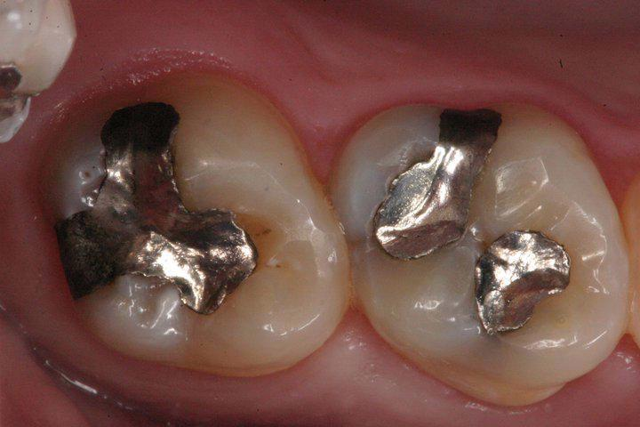 CEREC-Porcelain-Onlays-Before-Image